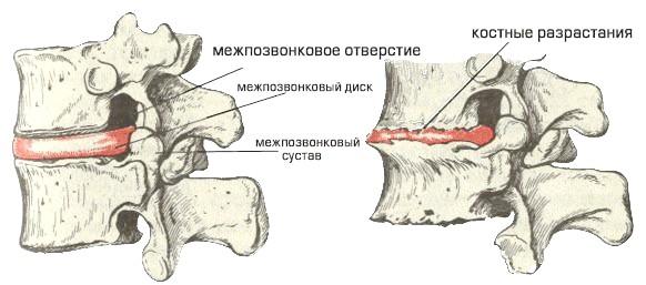 Фото - кісткові розростання при спондилезе поперекового відділу хребта