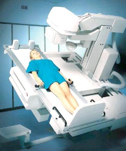 Фото - Рентгенографія при кіфозі