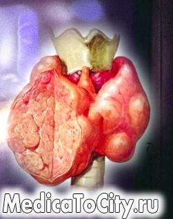 Фото - збільшена щитоподібна залоза лікування